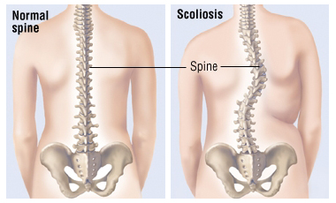 whatis-scoliosis